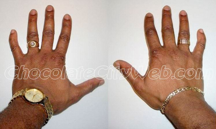 Clinodactyly: a curved finger.